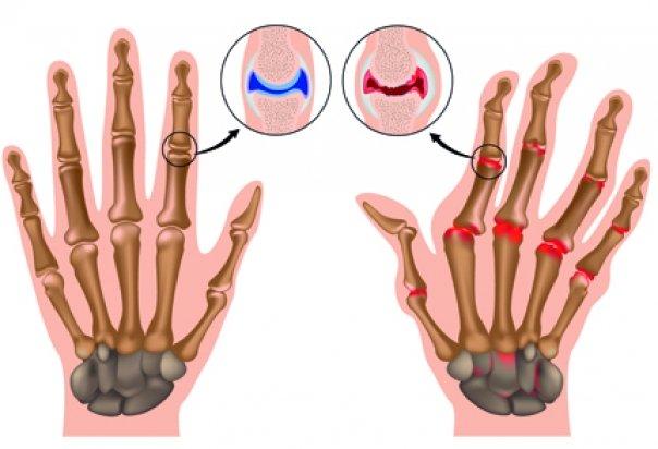 cum să tratezi artrita articulațiilor șoldului articulațiile se fisură cu osteochondroză
