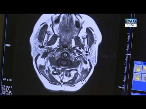 artroza articulației sacroiliace