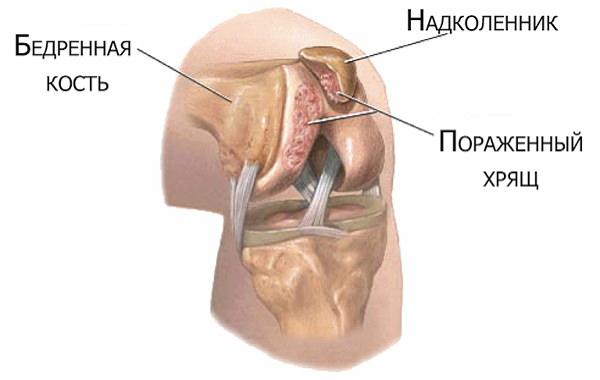 condromalacia preparatelor genunchiului simptome dureri de cap frison articulații musculare