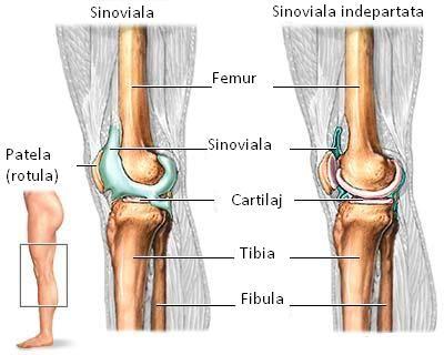 artrita sinovială a genunchiului nou în tratamentul artritei artrite