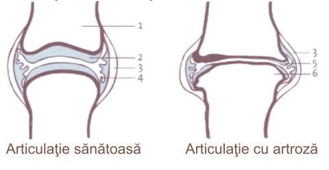 articulațiile doare bolnav amețit după o accidentare la genunchi