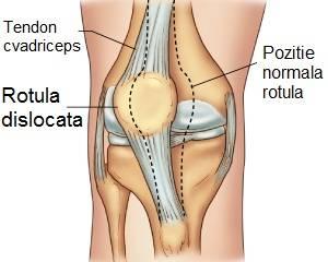 tratament articular la unică dureri de genunchi după fractură