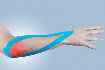 remedii pentru tratamentul epicondilitei articulației cotului artrita alergica pe maini