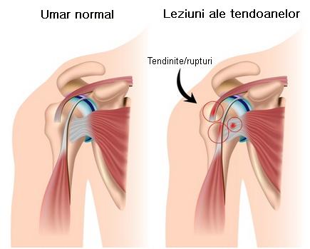 dureri la nivelul articulațiilor umărului