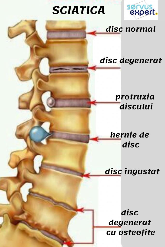 miscarile coloanei vertebrale)