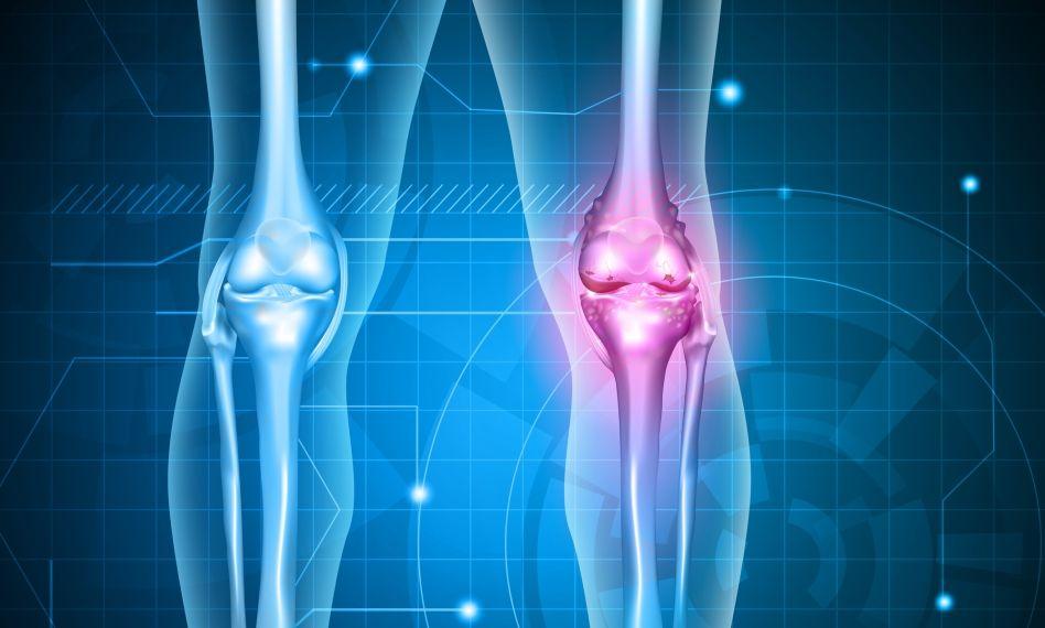 schema de tratament pentru artroza genunchiului 2 grade articulațiile șoldului decât un tratament