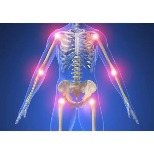 cum să tratezi artroza mâinilor și picioarelor artroza-tratamentul artritei gleznei