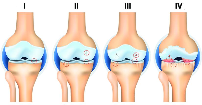 schema de tratament pentru artroza deformată a genunchiului