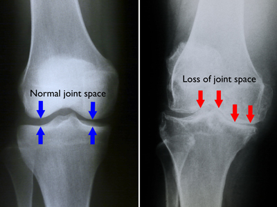 diagnosticul bolii articulare a piciorului