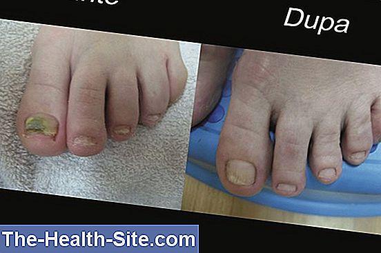 Liga Romana contra Reumatismului - Boli ale articulației unghiilor