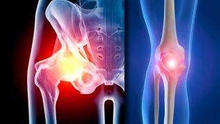 artroza traumatică a tratamentului articulației umărului