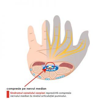 artroza articulației degetului mijlociu