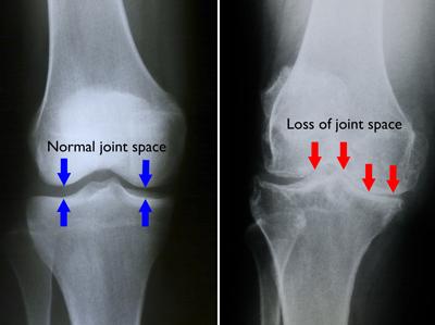 Gradul 3 de artroză a genunchiului da dureri articulare reumatoide