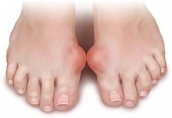 artrita guta tratament unguent glezna