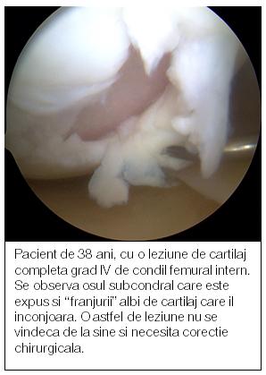 gonartroza tratamentului medicamentos al articulației genunchiului artroza deformantă a articulației clavicular-acromiale