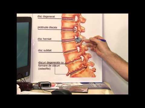 leac pentru articulațiile Amben artroza simptomelor articulației genunchiului și cauzele tratamentului