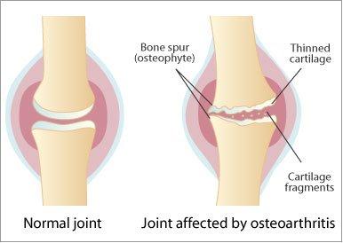artroza lombara artrita sau artroza mâinilor