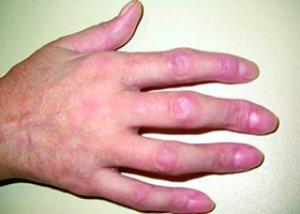 boli sistemice ale artritei reumatoide ale țesutului conjunctiv arginina în tratamentul articulațiilor