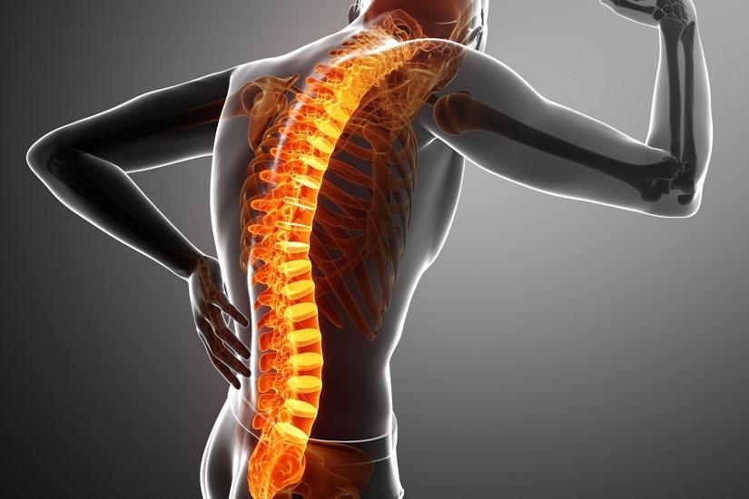 varicoză și dureri de spate)
