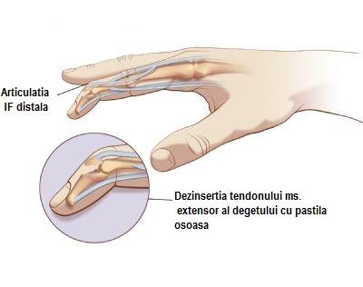 articulație pe picior despre degetul mic doare