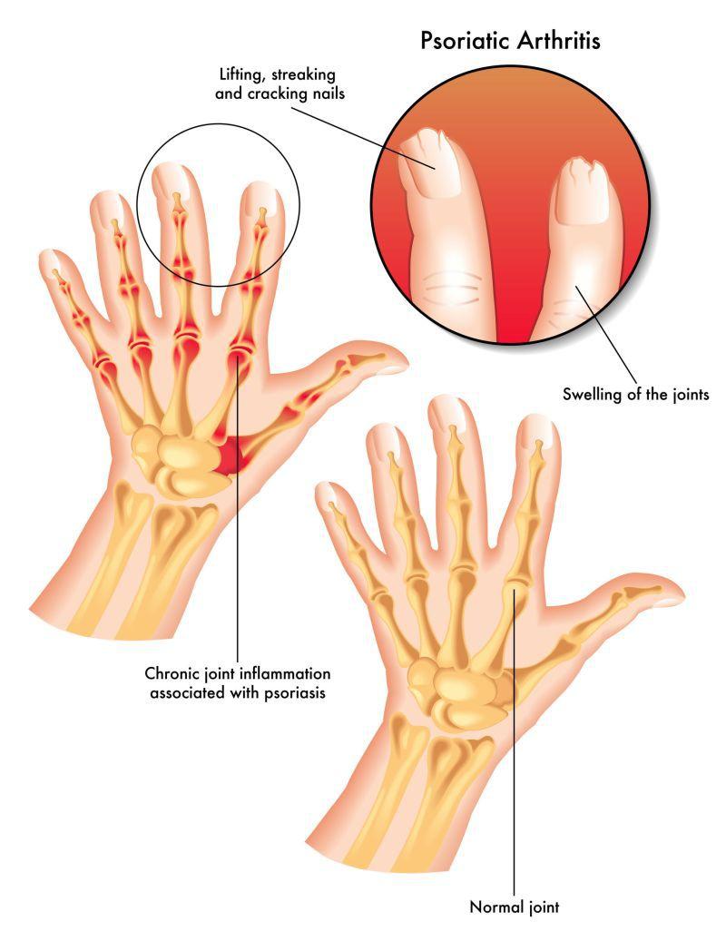 când coborâm scările, articulația genunchiului doare primul ajutor pentru durerile articulare