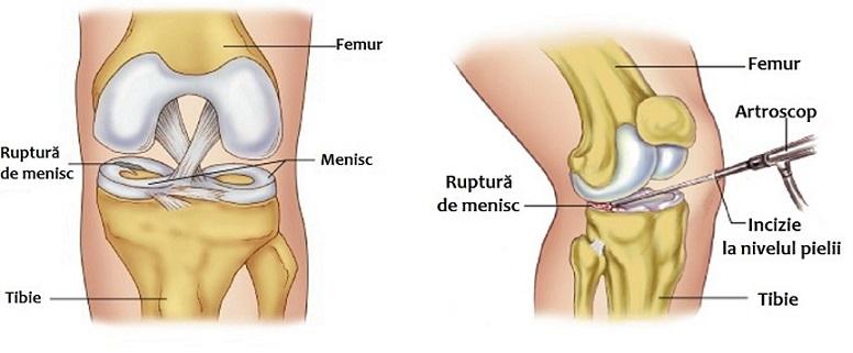 articulațiile și mușchii gambei tratamentul articulației pre-genunchi cu 2 grade