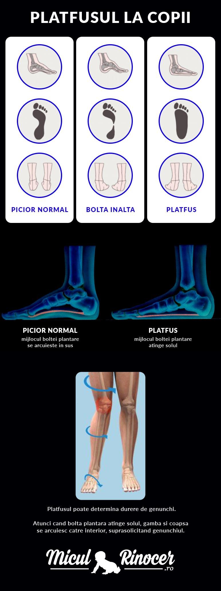 ce poate varia picioarele informații despre boală varicoză