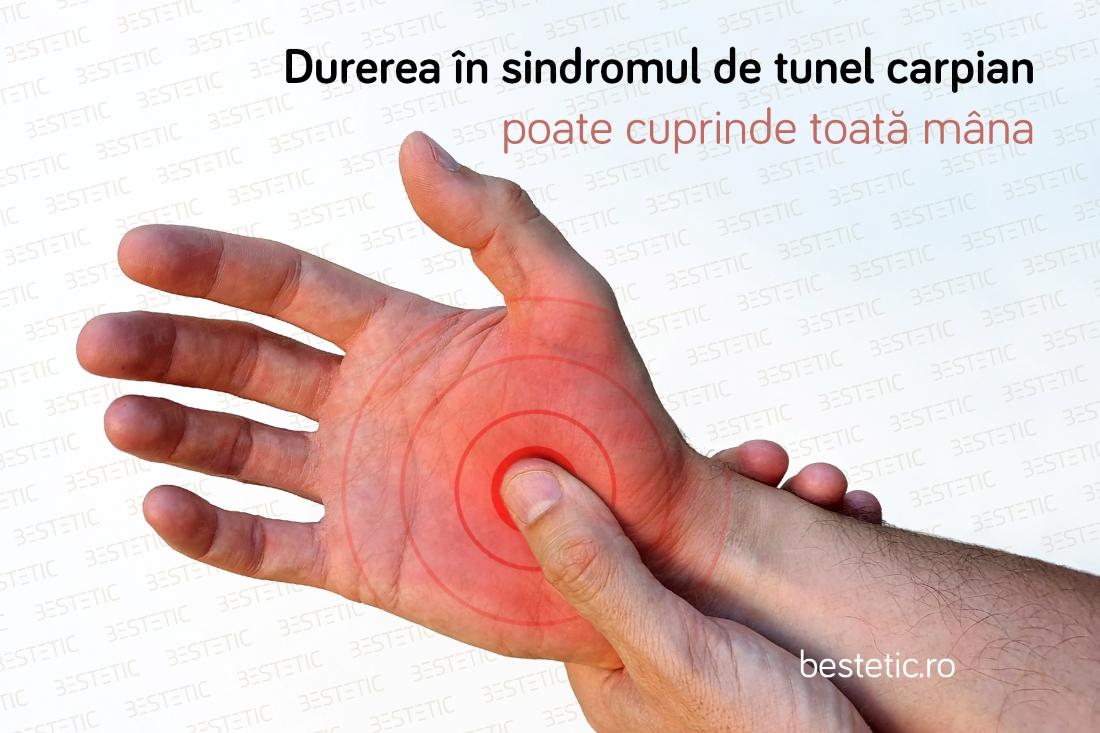 durerea la încheietura mâinii provoacă tratament