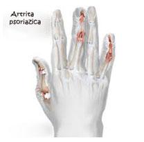 balansarea articulațiilor dureroase ale degetelor ameliorarea durerii pentru inflamația articulației șoldului