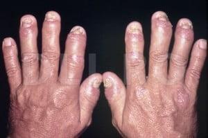 cum să tratezi articulațiile picioarelor de brad examen pentru artroza articulației gleznei