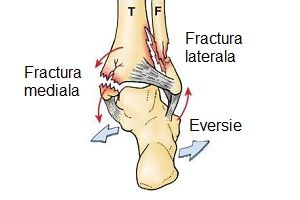 fractură articulară după fractură de gleznă artrita marinei cum să tratezi