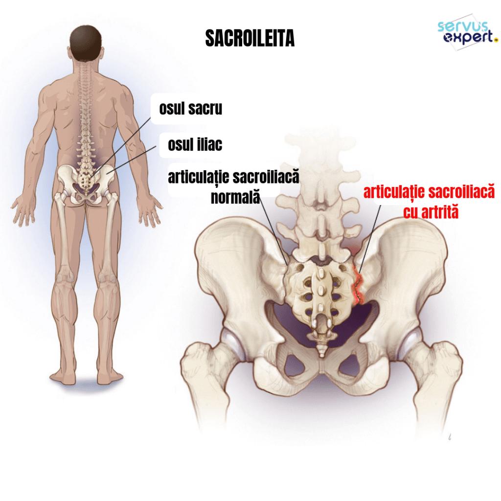 durerea în sacru dă articulațiilor șoldului tratamentul mialgiei articulare