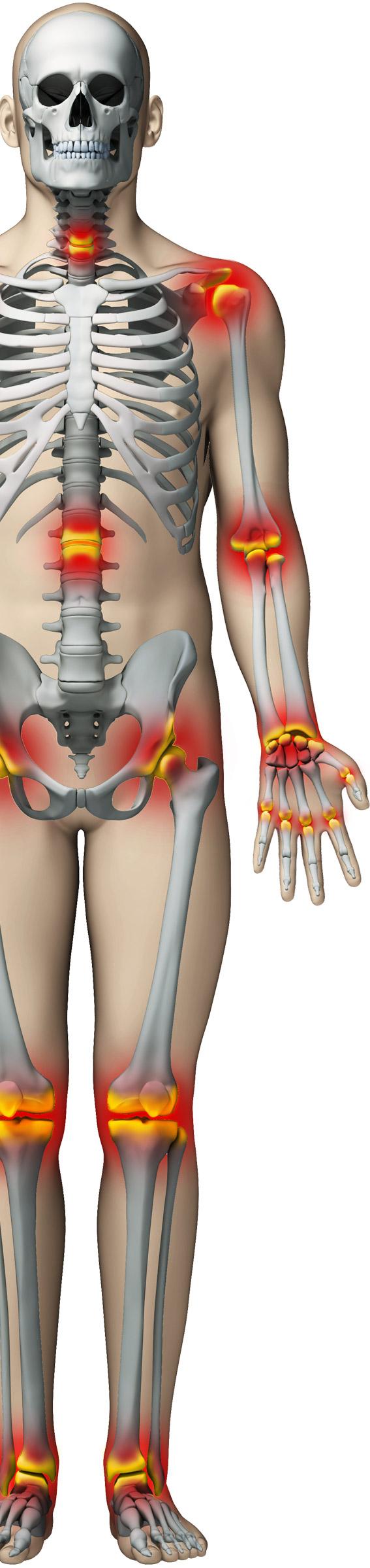 artroza genunchiului umflat la genunchi dureri articulare și nutriție