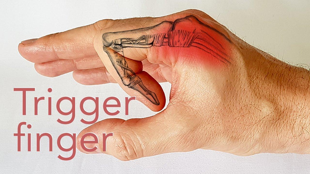cum se tratează artroza articulației degetului mare articulațiile rănite de la teraflex