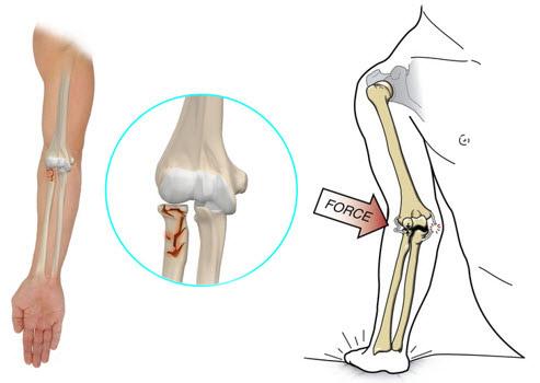 dureri de gât articulația ta tratamentul bursitei purulente a articulației cotului