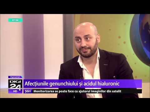 Tratarea varicelor în regiunea Kaluga