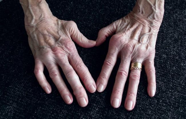 artrita articulațiilor mici ale mâinii unguent pentru dureri de spate și șold