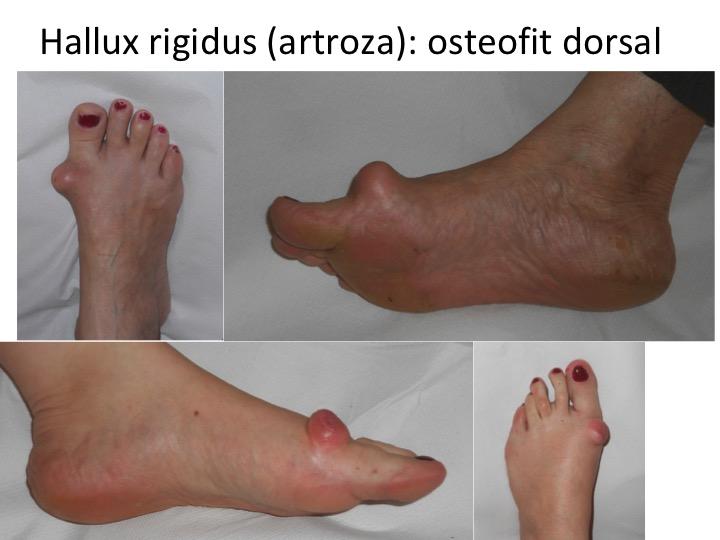 osteoartrita la picioare)