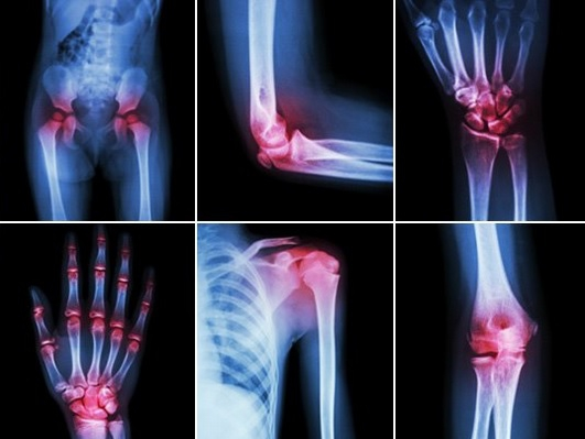 infecție virală dureri articulare cremă de plante articulare