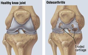 Medicamente pentru tratamentul osteoartrozei genunchiului