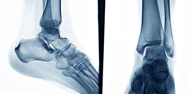 tratamentul oaselor și articulațiilor piciorului durere bruscă ascuțită la genunchi