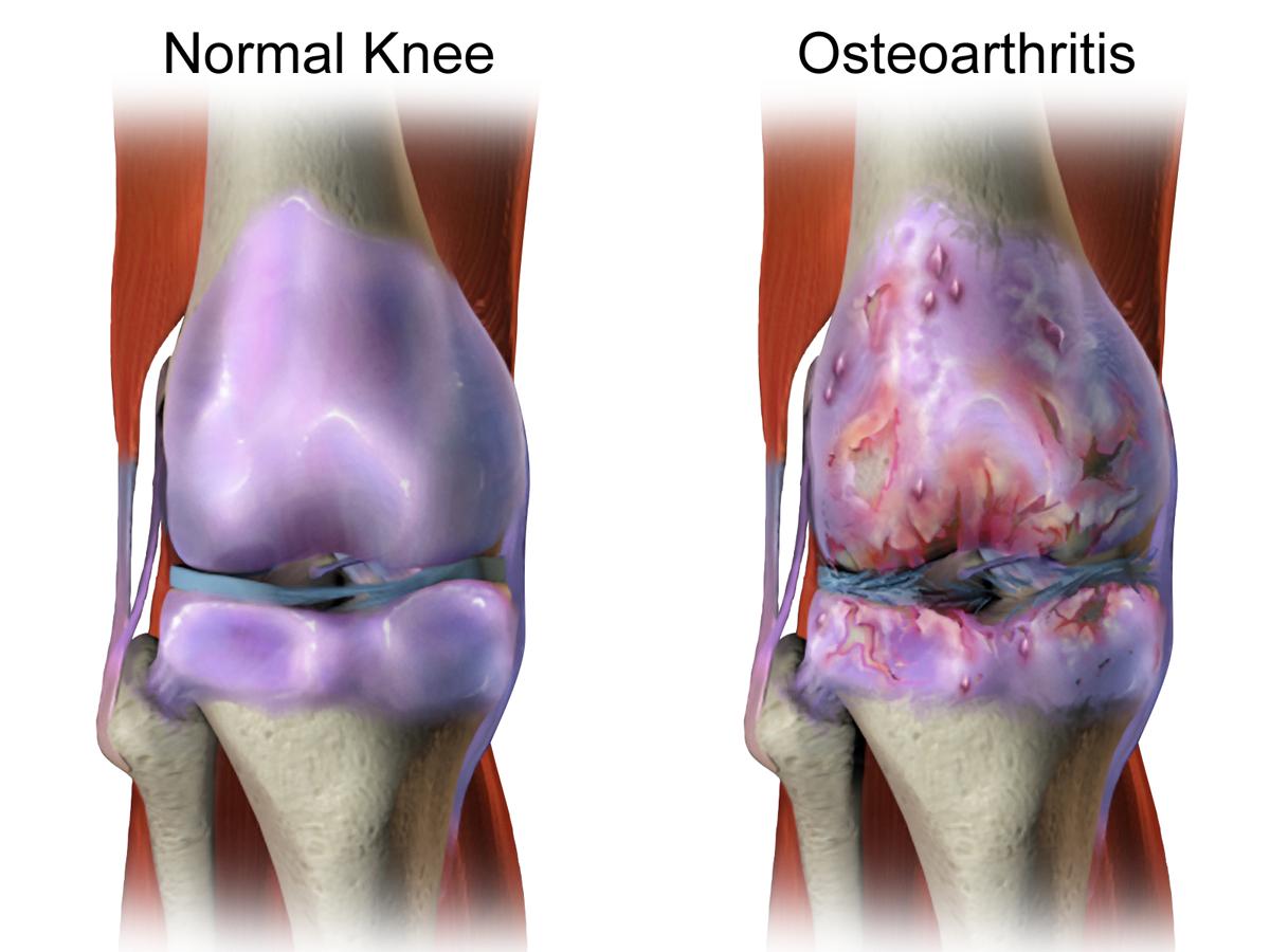 ceea ce se numește boală articulară erupții ale durerii articulare în corp