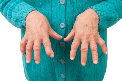 artrita tratament articular încheietura mâinii