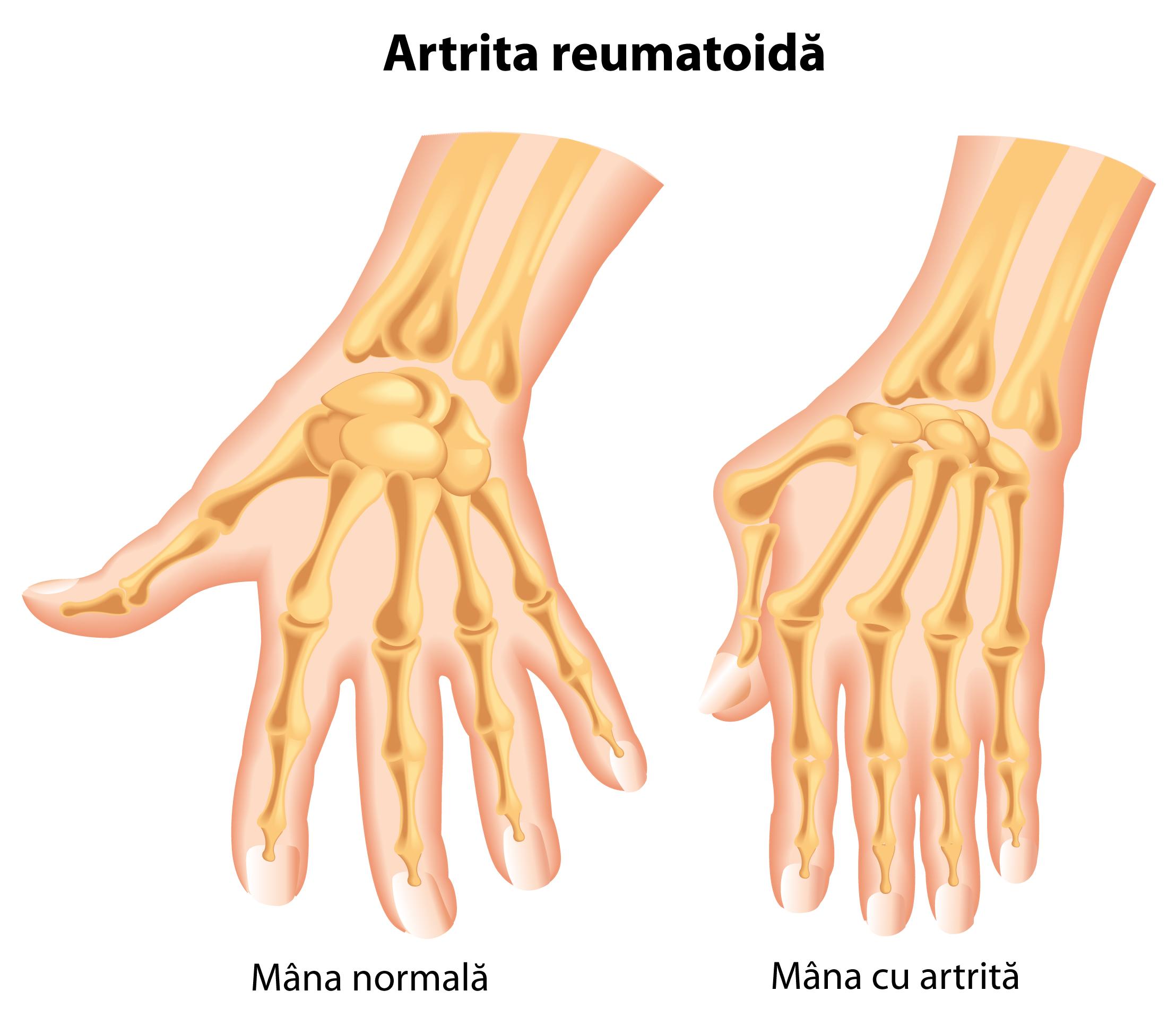 tratamentul artritei degetelor în tratarea displaziei de șold