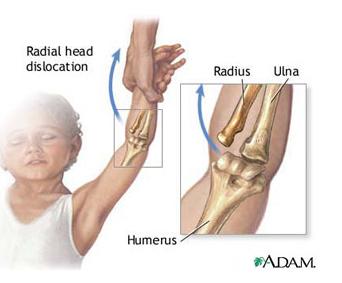 tratament cu bursită cronică a cotului artrita vârstei articulației genunchiului