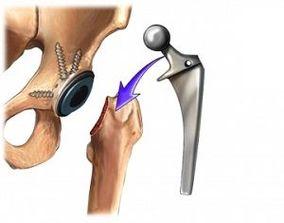tratament pt artrita artroza inflamației articulației genunchiului