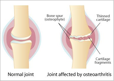 artroza articulațiilor intervertebrale și uncovertrale