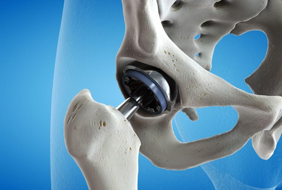 ortoped cu dureri de șold tratamentul artrozei cu artrosan
