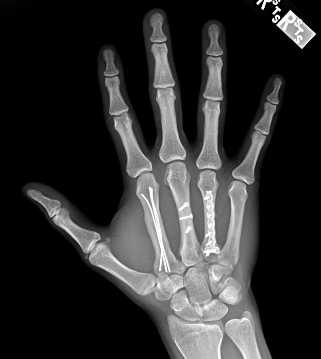 Artroza articulatiei carpo-metacarpiene a policelui (a degetului mare) - Rizartroza