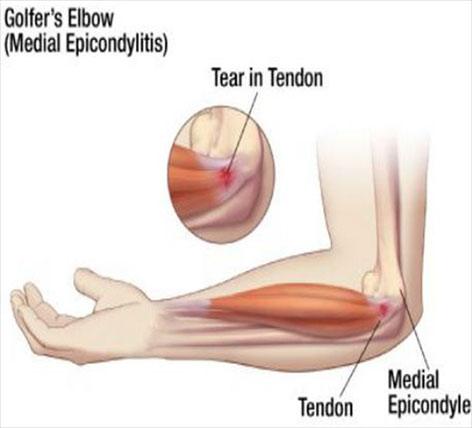 remedii pentru tratamentul epicondilitei articulației cotului droguri de țesut conjunctiv mucoase